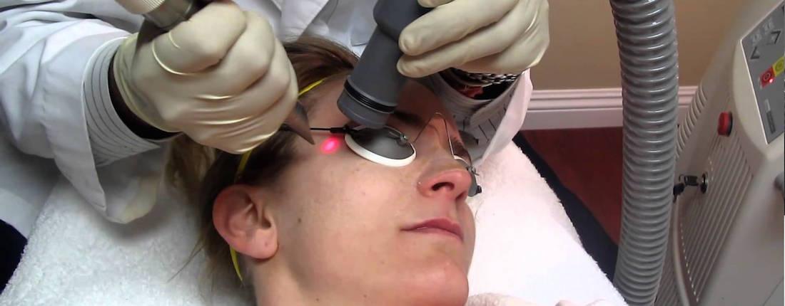 Fotona Laser Treatment